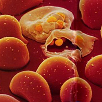 Red blood cells breaking open and releasing young malaria parasites.